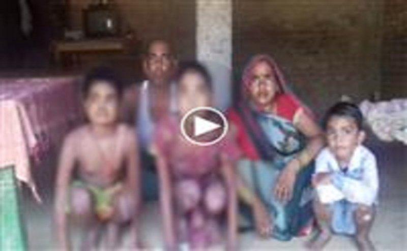 आगरा में पिता ने दो बेटियों के इलाज के लिए सरकार से मांगी मदद