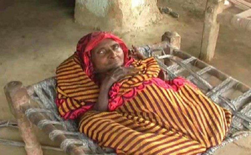 कानपुर में इस महिला को हुई अजीब बीमरी, लगातार घट रही लंबाई