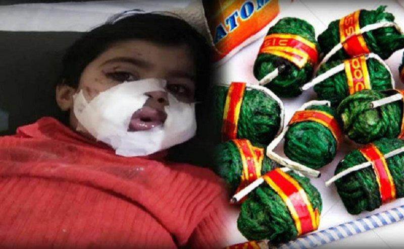 मेरठ में युवक ने बच्ची के मुंह में सुतली बम रखकर लगा दी आग, हालत गंभीर