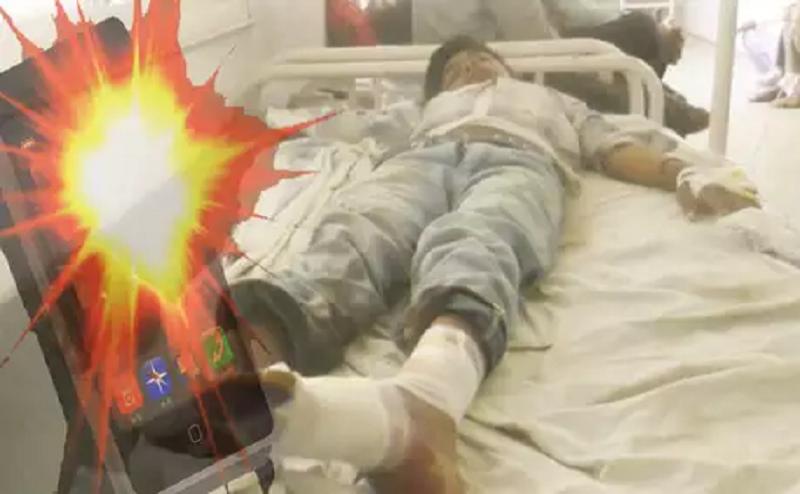 गेम खेलने के दौरान ब्लास्ट हुआ मोबाइल, सात साल का बच्चा बुरी तरह झुलसा