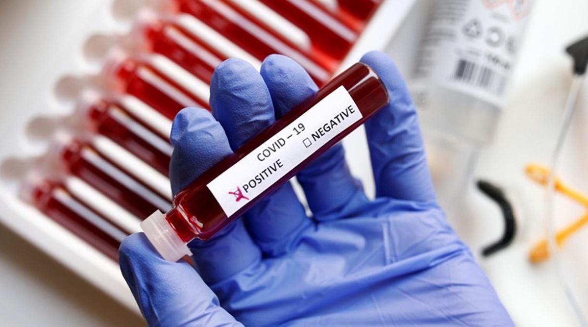 COVID-19 Update: UP में एक दिन में सबसे ज्यादा बढ़े कोरोना संक्रमितों के 341 केस, आंकड़ा पहुंचा 5515, 138 की मौत