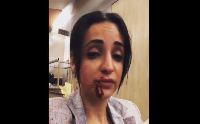 Bleeding Sanaya Irani shares video blaming her director
