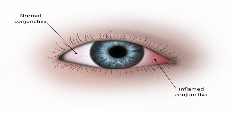 Covid Can Impact the Eyes?