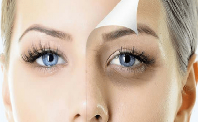 Under Eye Dark Circles; here's how to get rid of the ugly eye patches
