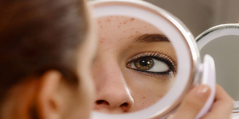 Tired of breakouts? Read to know the causes of Pimples