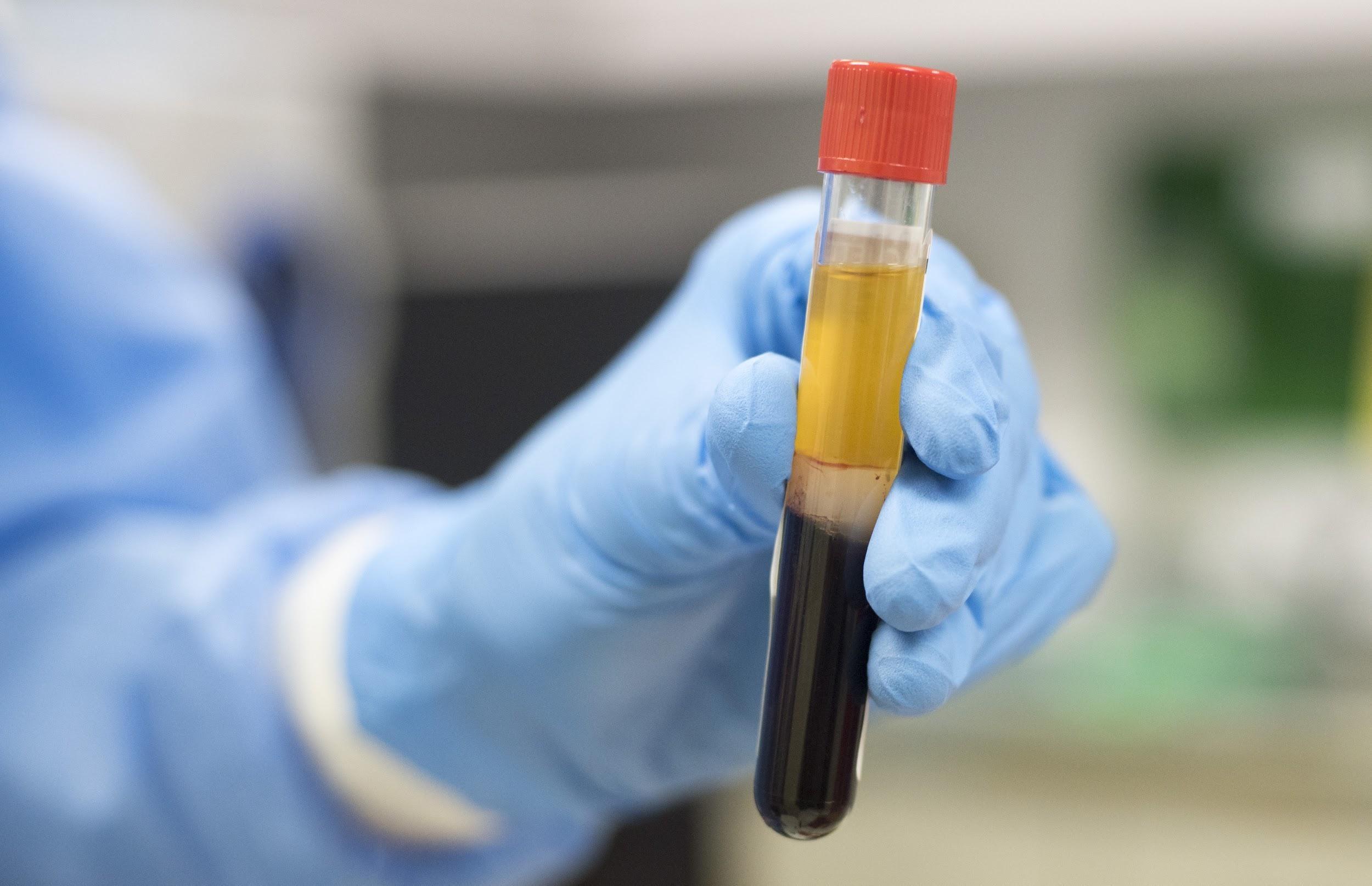 Oxford Covid-19 vaccine trials resumes in PGIMER
